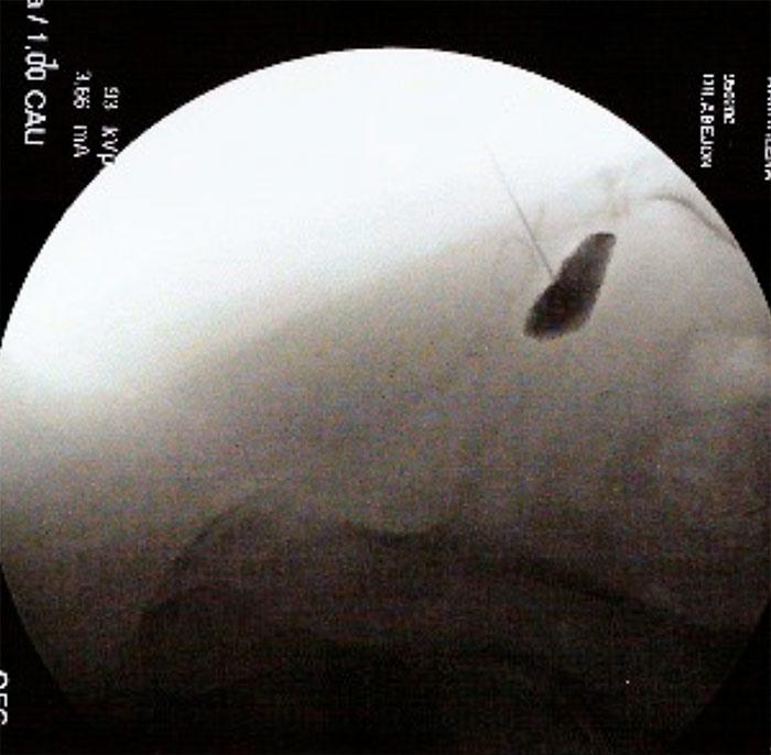 Bloqueo y radiofrecuencia del ganglio impar